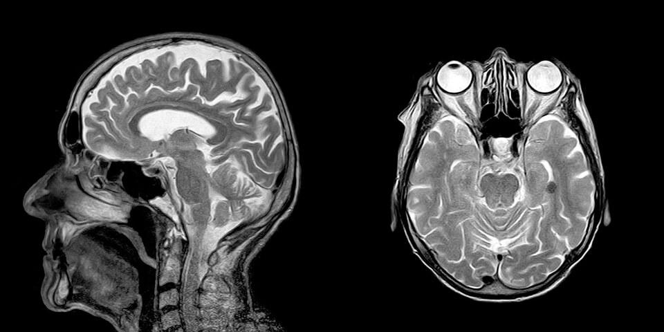 компьютерная томография входит в программу омс